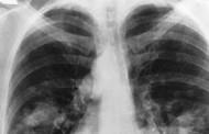 Exame de sangue identifica indivíduos com chance de desenvolver câncer de pulmão, diz OMS
